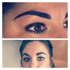 Restructuration de sourcils